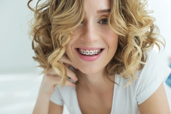 Braces – What are the options?